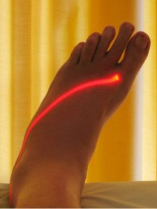 Laser Theraphy